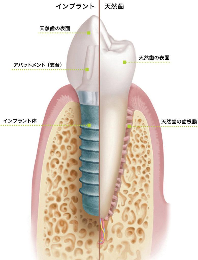 inplant_image